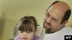 Ученые обнаружили новый метод диагностики синдрома Дауна