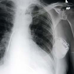X-ray showing a pacemaker