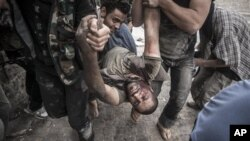지난 20일 시리아 알레포에서 총상을 입은 반군. (자료사진)