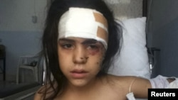 A girl wounded by shelling is treated at a makeshift hospital in Houla near Homs July 17, 2012.