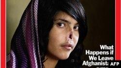 Портрет знівеченої афганської жінки виграв першу премію фотоконкурсу