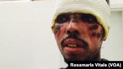 Migrant dont le visage a été brûlé par des passeurs en Libye (Rosamaria Vitale)