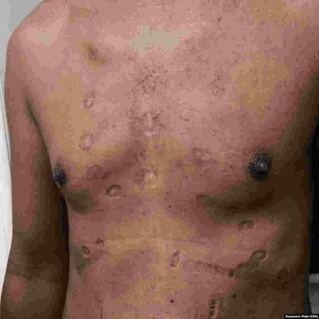 Un homme arbore des cicatrices sur son torse après avoir été battu par les passeurs en tentant de rejoindre la Libye pour prendre un bateau pour l'Europe. Cette image a été obtenue par VOA Afrique auprès d'un médecin italien de Milan qui soigne les migrants dans un centre d'accueil.