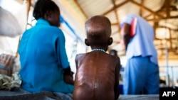 Seorang anak yang menderita kurang gizi parah dirawat di rumah sakit Northern Bahr El-Gazhal, Sudan Selatan (foto: dok).