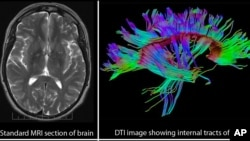 Comparison of standard brain MRI image with the three dimensional internal structure of the brain revealed by Diffusion Tensor Imaging (DTI).