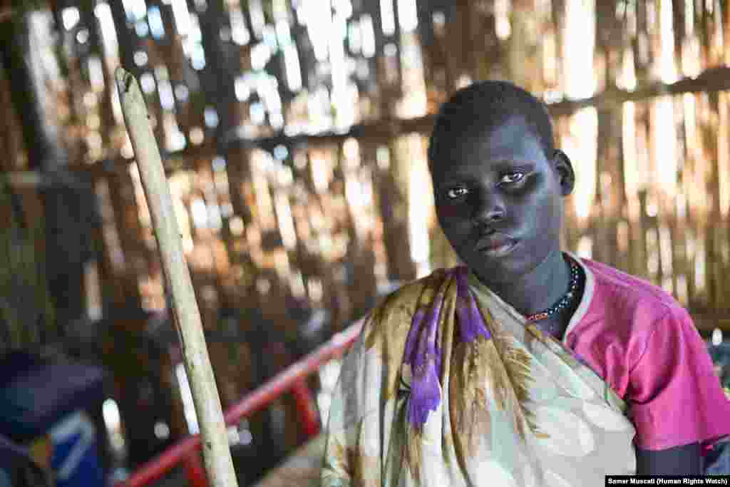 "Physically disabled Angelina, 20, was left behind when members of a militia allied with the South Sudan army abducted three women and a teenage girl that she was hiding with. ""When I fled [my village], I felt very tired and I sometimes would fall and have"
