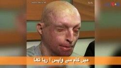 تیزاب حملے کا شکار ہونے والے ایک شخص کی کہانی