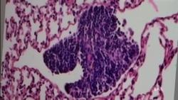 VOA英语视频: 科学家发现阻止癌细胞扩散的奥秘