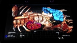 Virtual Medicine Takes Shape with Floating Body Parts