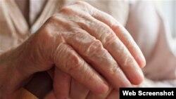 El Alzheimer es la más común de una condición condocida como demencia.