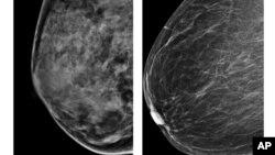 زنانی که بافت پستان آنها متراکم تر است، خطر ابتلا به سرطان پستان در آنها بیشتر است. تصویر سمت چپ، پستان متراکمتر را نشان می دهد.