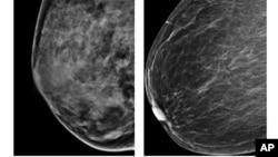 Esta radiografía del American College of Radiology muestra un pecho extremamente denso (izquierda) y otro menos denso. Un estudio ha descubierto cuatro tipos de cáncer de mama por lo que los tratamientos deben ser diferentes.