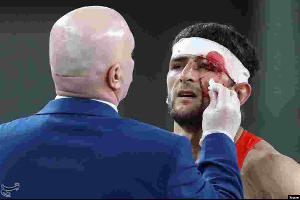 انور گدیوف از بازی قبل آسیب دیده بود.