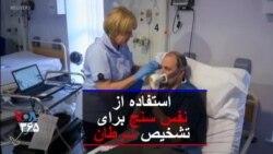 آزمایش یک دستگاه نفس سنج برای تشخیص سرطان