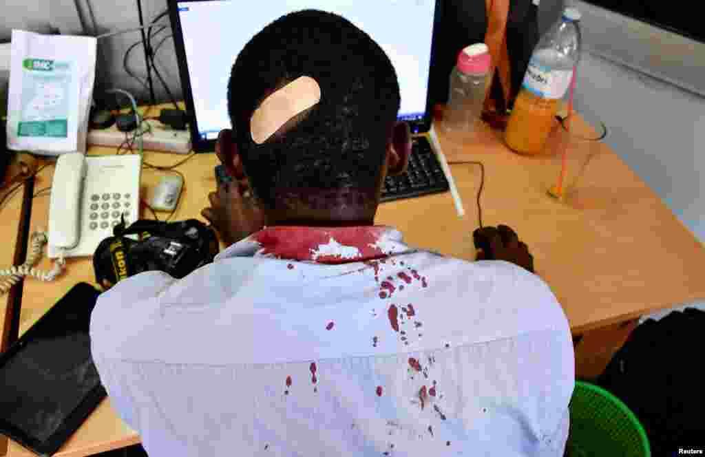 Xavfsizlik kuchlari hujumida jarohat olgan jurnalist. Kampala, Uganda.