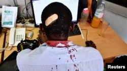 Paul Murungi, novinar koji radi sa novinama New Vision, nalazi se u njihovoj redakciji nakon što je ozlijeđen u napadu sigurnosnih službenika, izvan ureda Ujedinjenih nacija za ljudska prava, dok je radio svoj posao, Kampala, Uganda, februar 2021.