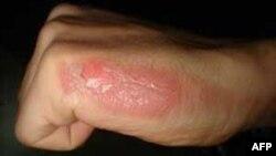 Các bác sĩ Úc hy vọng thay thế được da cho nạn nhân bị bỏng
