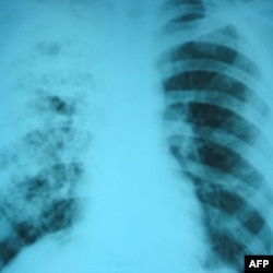 Snimak pluća pacijenta sa tuberkolozom