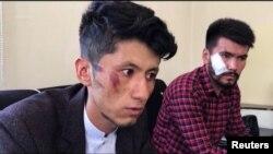 تلاش برای تخلیه ژورنالستان ادارهٔ رسانه های جهانی ایالات متحده در حالی صورت می گیرد که با تسلط طالبان، فعالیت رسانه های آزاد کاهش یافته و خبرنگاران توقیف و لت و کوب شده اند