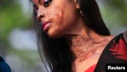 بنگلہ دیش میں تیزاب حملے کا شکار ہونے والی ایک لڑکی۔ فائل فوٹو