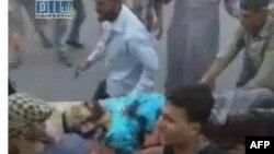 Một cư dân Hama bị thương được đưa đến bệnh viện