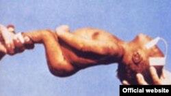 La infección del tétanos es mortal porque causa una parálisis que impide al bebé respirar y amamantarse. Foto: archivo ONU