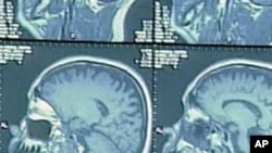 可以通过核磁共振成像扫描提前查出老年痴呆症