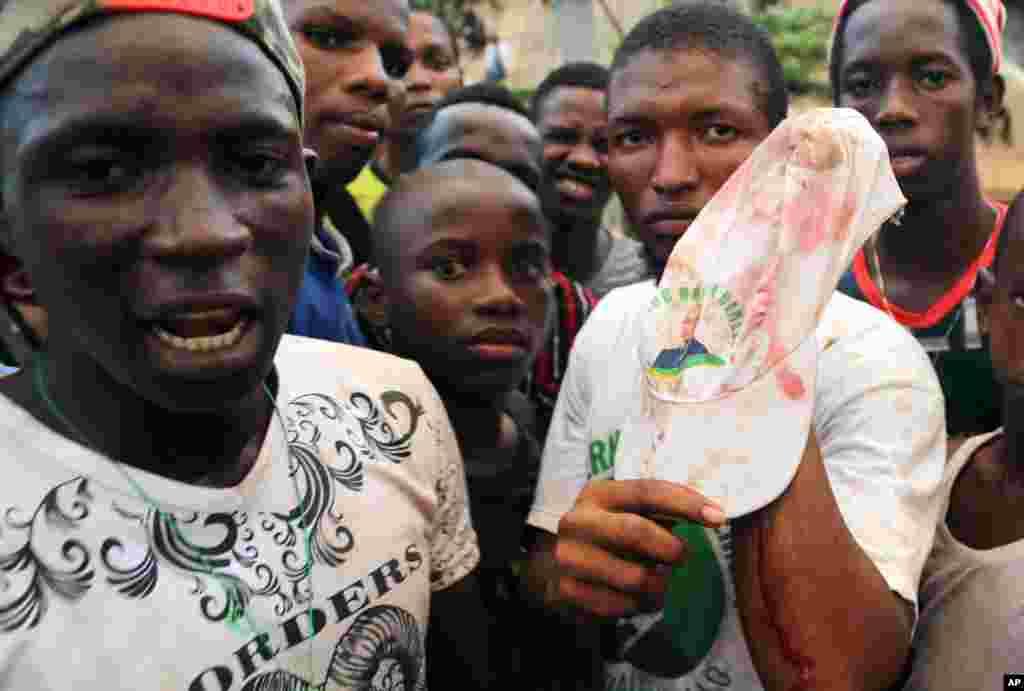 Un homme blessé dans les affrontements enregistrés lors d'un meeting de l'opposant Cellou Dalein Dialo le 8 octobre 2015