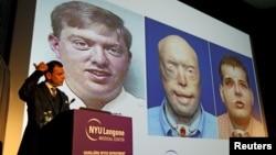 Tiến sĩ Phẫu thuật Tạo hình Thẩm mỹ Eduardo D. Rodriguez tại Trung tâm Y tế Langone thuộc Đại học New York chủ trì một cuộc họp báo để công bố thành công việc ghép toàn bộ khuôn mặt đầu tiên từ trước tới nay, New York, ngày 16 tháng 11, 2015.