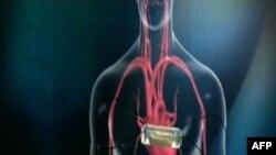 Një aparat i ri për pacientë me sëmundje në zemër
