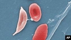 Célula da anemia falciforme (esq.) e glóbulos vermelhos normais (dir.) de um paciente sofrendo de anemia das céllulas falciformes (Janice Haney Carr/CDC/Sickle Cell Foundation of Georgia via AP
