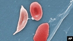 A sickle cell, left, and normal red blood cells of a patient with sickle cell anemia. (File)