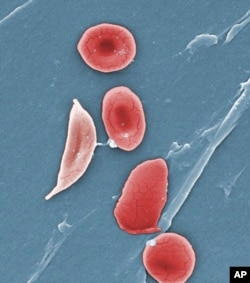گلبولهای قرمز در اختلال کمخونی داسیشکل تغییر شکل داده و شبیه به داس می شوند.