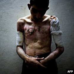 Xavfsizlik organlari tomonidan qiynoqqa solingan bolalardan biri