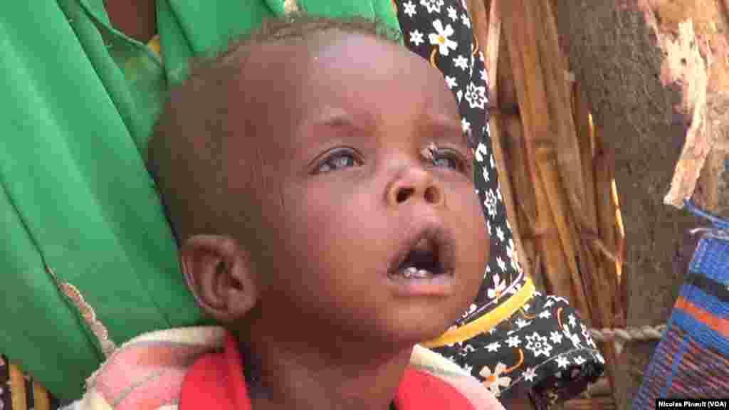 Mamadou a un an et ne pèse même pas 6 kilos. Il vit dans le camp de réfugiés d'Assaga, Diffa, Niger, le 18 avril 2017 (VOA/Nicolas Pinault)