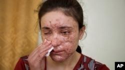 Lamia Haji Bachar, 18 ans, ancienne captive du groupe Etat islamique, Irak, 5 mai 2016.