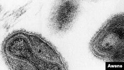 El último caso de viruela en EE.UU. fue en 1949 y en 1980 el virus fue declarado oficialmente erradicado en todo el mundo