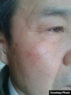 程海律师被打(图片来源:梁小军律师推特)