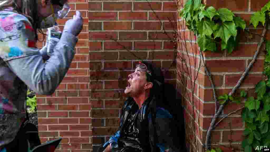 미국 미네소타주 미니애폴리스에서 흑인 남성 조지 플로이드 사망 사건에 항의하는 시위가 열린 가운데 한 여성이 경찰이 발사한 최루탄으로 고통을 호소하는 시위자를 돕고 있다.