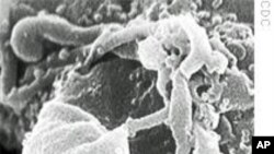 Human immunodeficiency virus (HIV), virus penyebab AIDS.