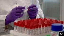 Un técnico de laboratorio pone una etiqueta en un tubo de ensayo durante una investigación sobre el coronavirus, COVID-19, en la subsidiaria de Johnson & Johnson, Janssen Pharmaceutical en Beerse, Bélgica, el miércoles 17 de junio de 2020.