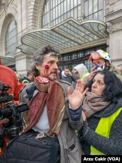 Polisin attığı flash ball silahıyla yaralanan gazeteci