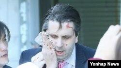 마크 리퍼트 주한 미대사가 5일 오전 서울 세종문화회관에서 열린 민화협 주최 초청 강연에 참석했다가 괴한의 공격을 받고 피를 흘리며 병원으로 향하고 있다.