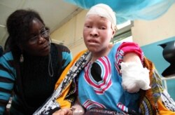 Report on Albinism Filed By Loirdham Moyo