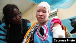 FILE - Maria Chambanenge, a woman with albinism shown in this undated photo, was reportedly attacked by five armed men, in Mkowe village, in Tanzania's Rukwa region, for her body parts.