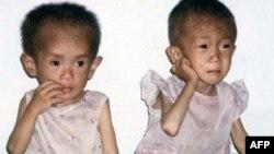 Діточки у КНДР страждають від недоїдання