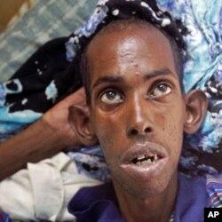 Un refugié somalien dans un hôpital au Kenya