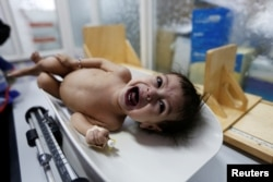 A malnourished girl cries as she is being weighed at a malnutrition treatment center in Sanaa, Yemen, Oct. 31, 2016.