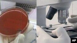 آزمایش افرازات سینۀ مریضان توبرکلوز