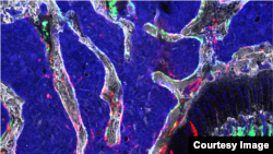 ARCHIVO- Una célula madre osteocondroretrinal (OCR), un tipo de célula madre ósea recientemente identificada que parece ser vital para el desarrollo esquelético y puede proporcionar la base para nuevos tratamientos para la osteoartritis, la osteoporosis y las fracturas óseas.